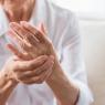 CBD for Arthritis: Case Studies and Benefits