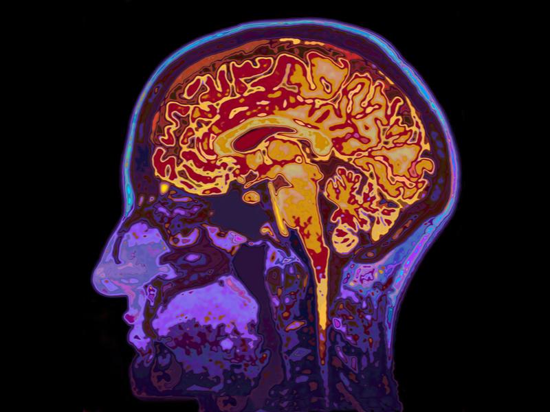 brain scan for alzheimers